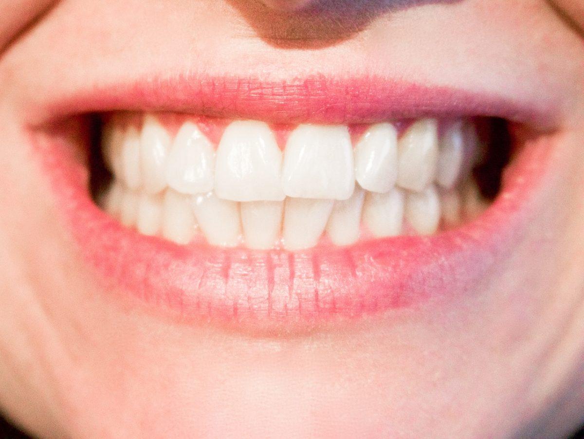 Obecna technika używana w salonach stomatologii estetycznej być może sprawić, że odzyskamy śliczny uśmiech.