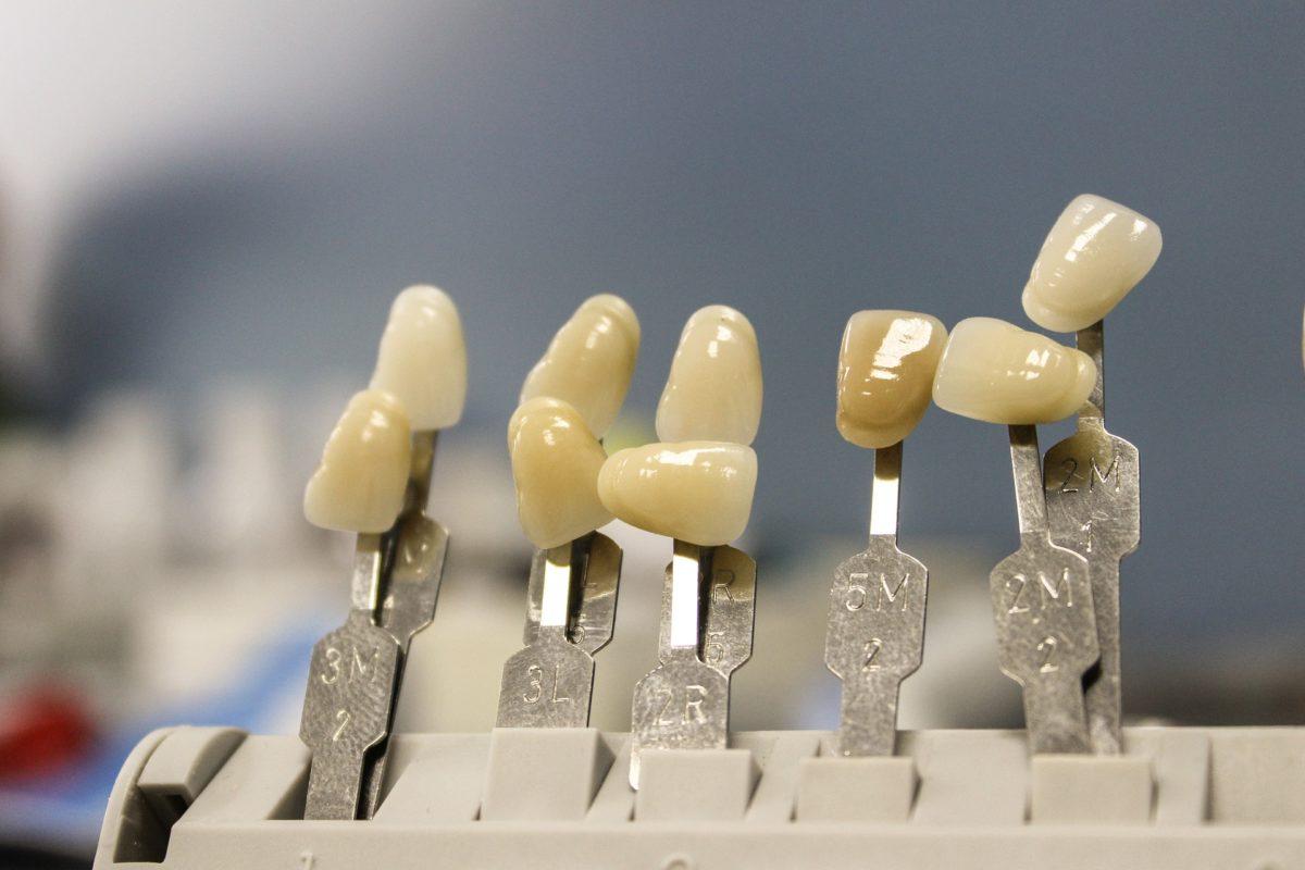 Ładne nienaganne zęby oraz wspaniały przepiękny uśmieszek to powód do zadowolenia.